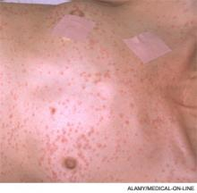 Petechial rash on anterior upper body, characteristic of fat emboli syndrome.