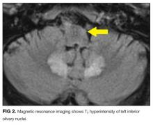 Magnetic resonance imaging shows T2 hyperintensity of left inferior olivary nuclei.