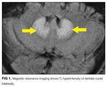Magnetic resonance imaging shows T2 hyperintensity of dentate nuclei bilaterally.