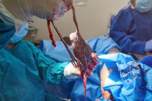 placenta in delivery room