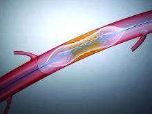 Illustration of a stent