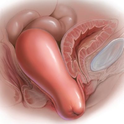 Optimal surgical management of stage 3 and 4 pelvic organ prolapse | MDedge  ObGyn