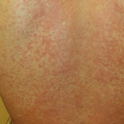 Man 25 With Sinus Pain Sore Throat And Rash Clinician Reviews