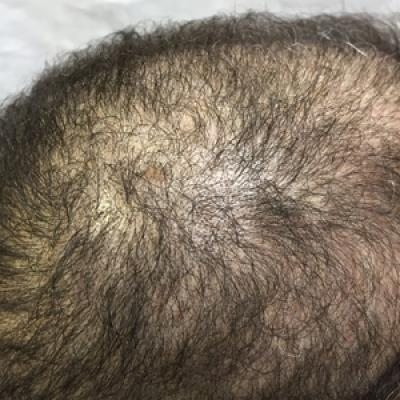 Hair loss deficiency reversal zinc Zinc deficiency
