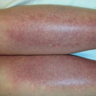 Sunburn Purpura Mdedge Dermatology