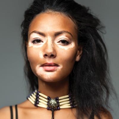 Is Vitiligo In Vogue The Changing Face Of Vitiligo Mdedge Dermatology