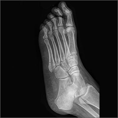 Adult Foot Fractures A Guide Clinician Reviews