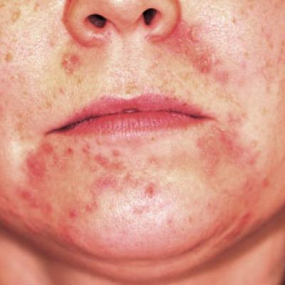 perioralis dermatitis a papilloma vírus első tünetei