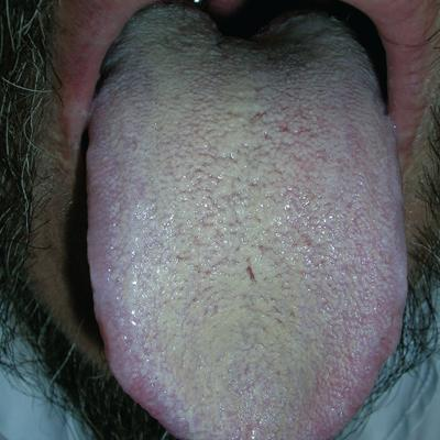 tongue papillae hypertrophy causes priznaky hpv v hrdle