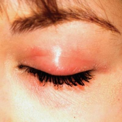Eyelids Are Irritated (But Eyes Are Fine) | Clinician Reviews