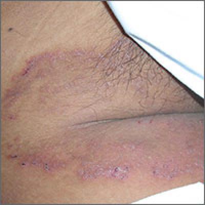 Woman with rash in groin | MDedge Family Medicine