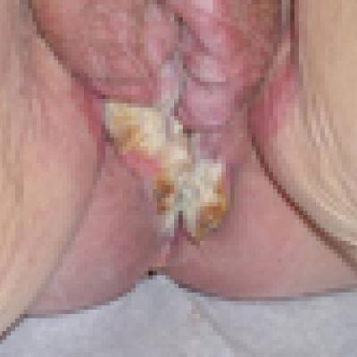 varpos karcinoma)