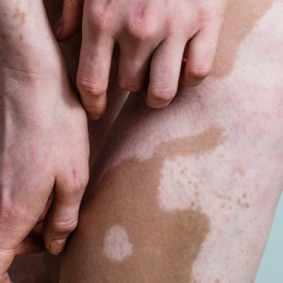 Vitiligo Disease Triggers Psychological Stressors Preceding The Onset Of Disease Mdedge Dermatology