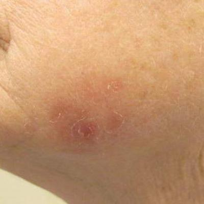 Erythematous Scaly Patch On The Jawline Mdedge Dermatology