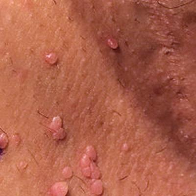 Women papules How To